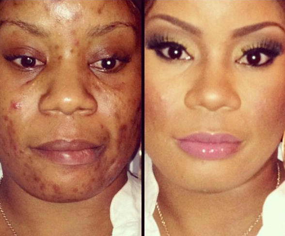 Skin Problems See The Wonders Of Make Up Interesting Before