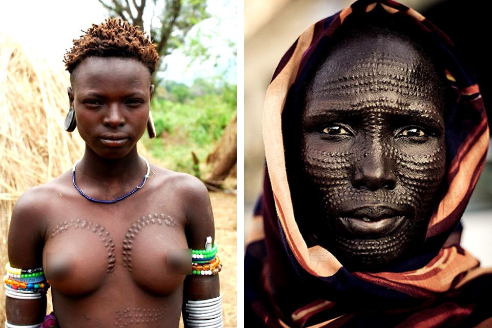 scars African facial