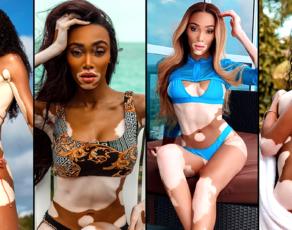 #BIKINIBAE: See Skin Like You've Never Seen Before, Check Out 24 Hot Swimwear Looks By Vitiligo Superstar Winnie